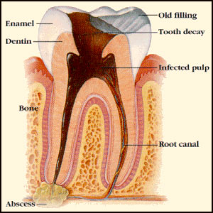 Cavitations & Root Canals – Interview With Dr. Meinig and Dr. LaMarche PART 1