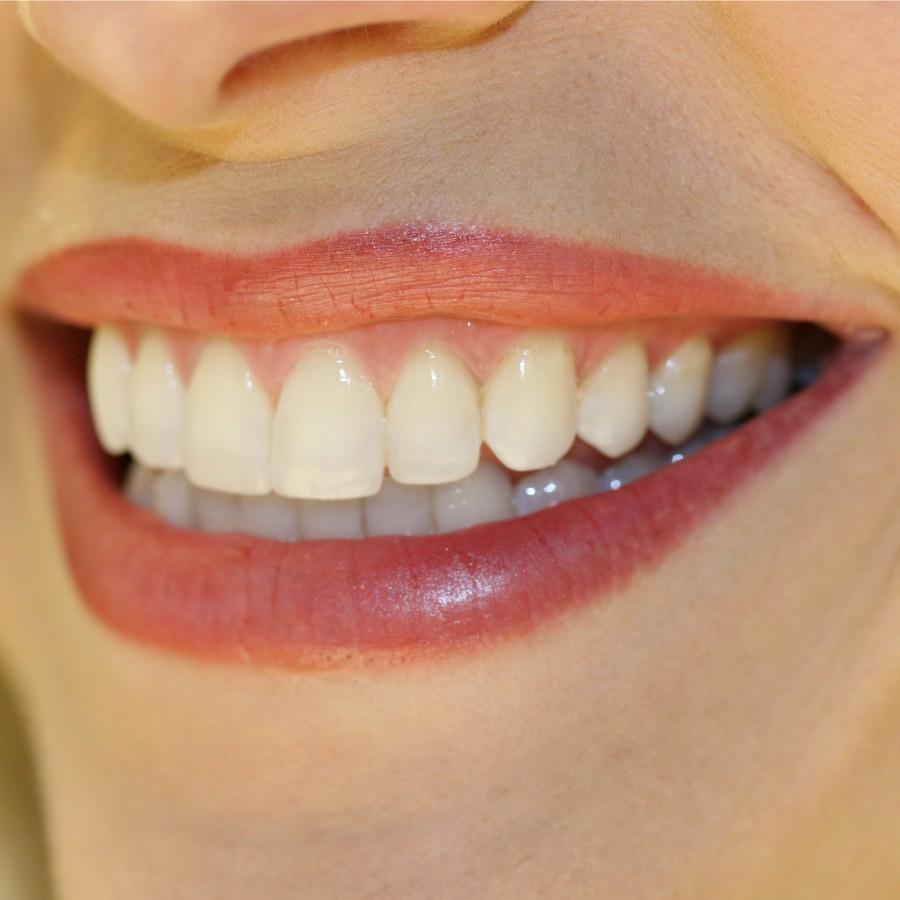 biocompatible-dentistry