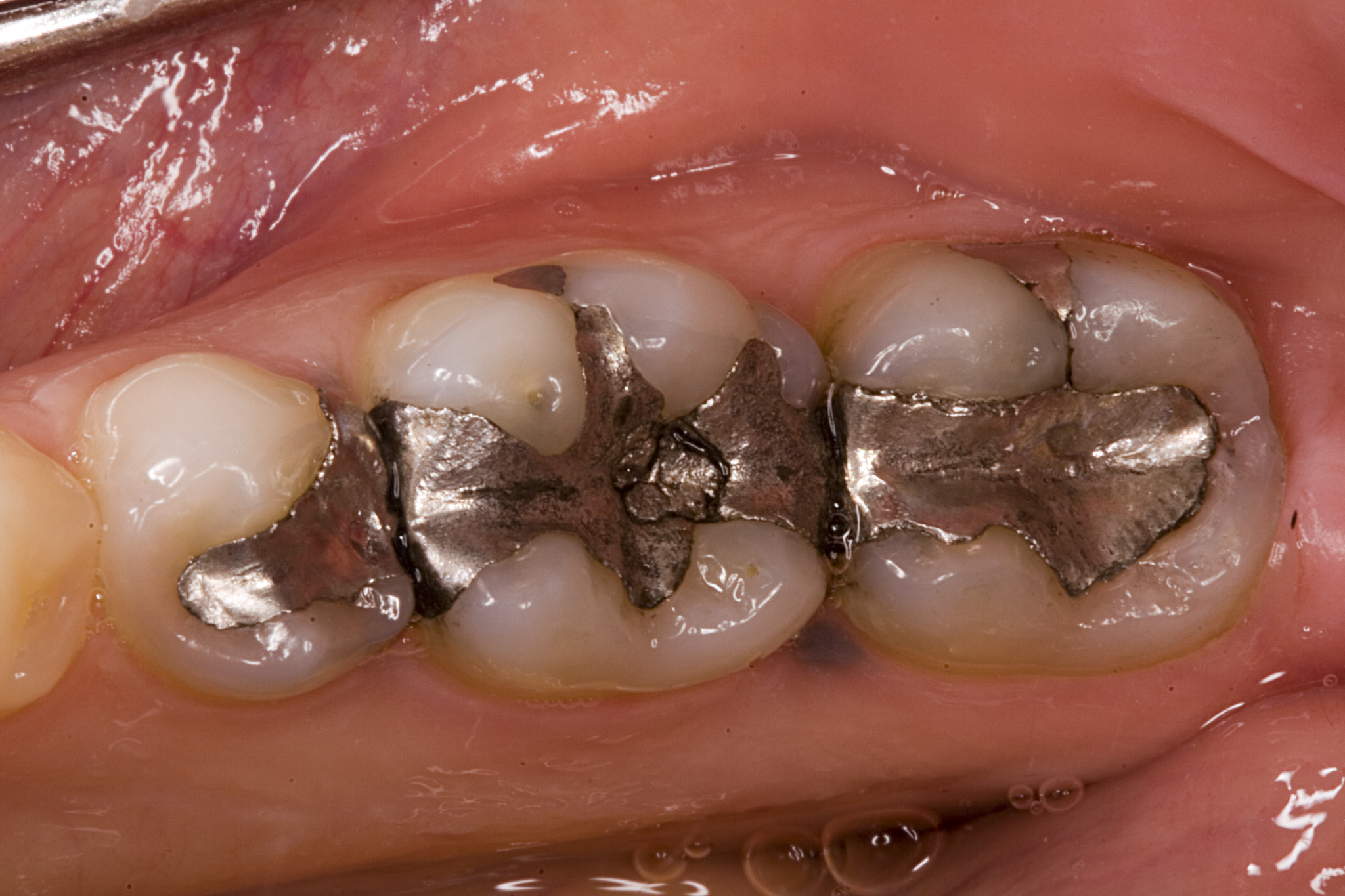 Mercury fillings danger