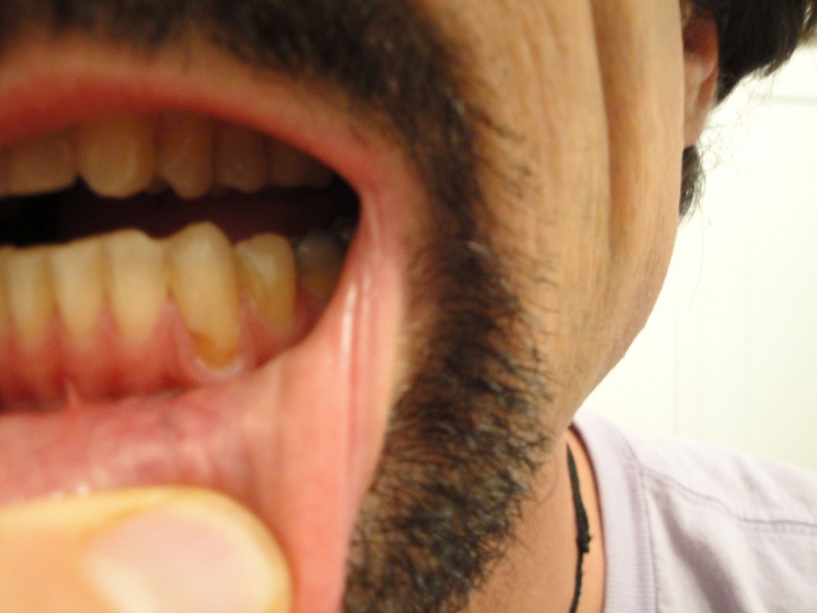 Raw Food Dental Problems